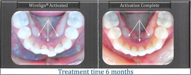 Phenomenal Orthodontics Minster Dental Care Wiring 101 Orsalhahutechinfo